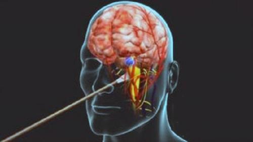 """""""听""""音辨脑癌细胞 激光探测让智慧医疗更进一步"""